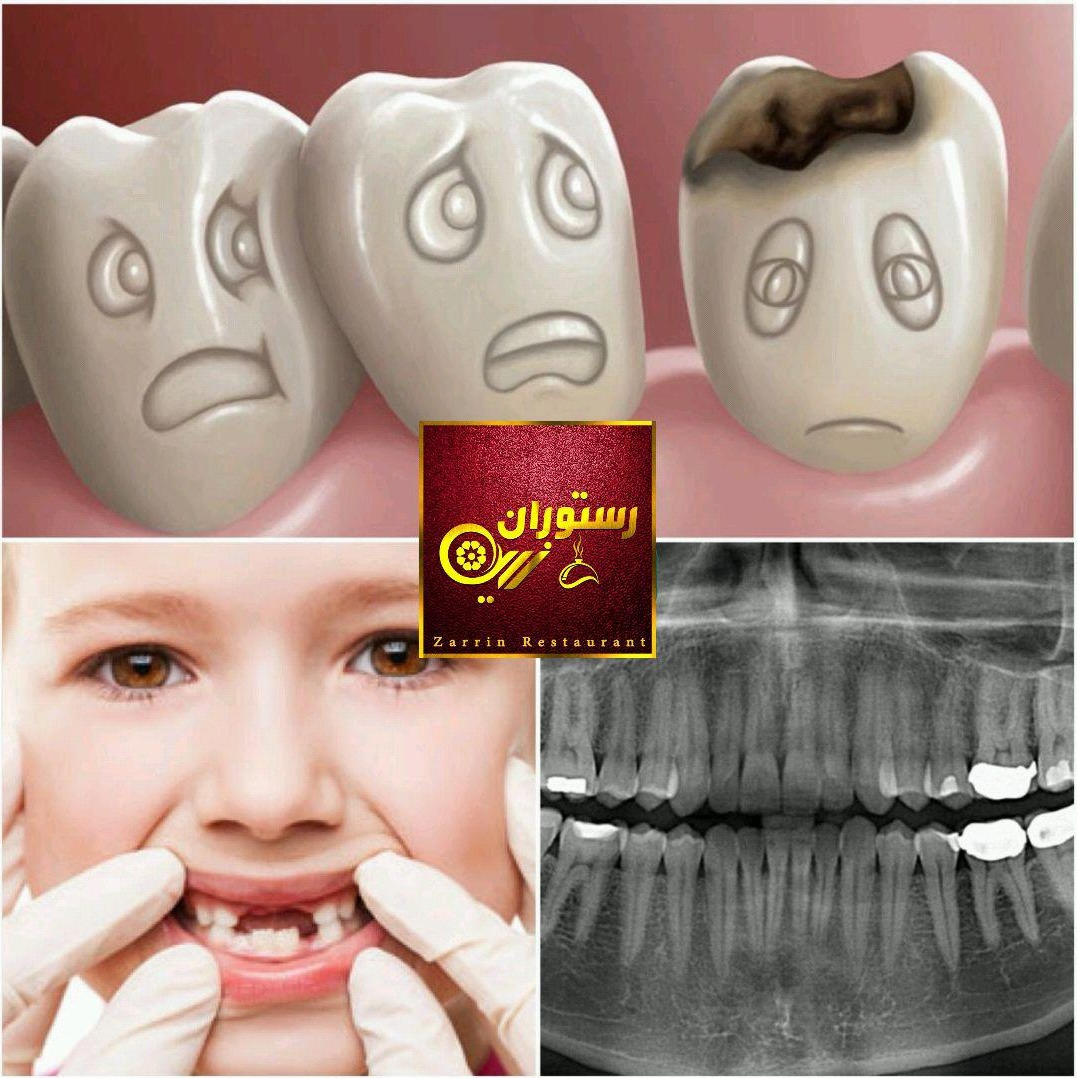 دندان خراب باعث معده خراب می شود.